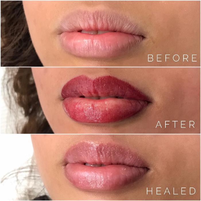 lip tattoo process
